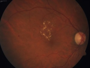 background_diabetic_retinopathy